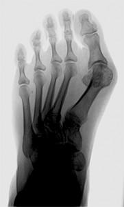 Hallux valgus im Röntgenbild