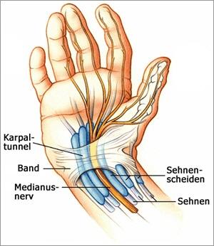 Karpaltunnelsyndrom Op Zentrum Orthopädie Chirurgie
